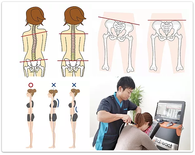 姿勢と骨盤の歪みと施術